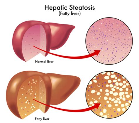 causes of a fatty liver picture 11