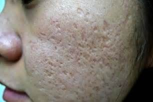icepick acne scars picture 11
