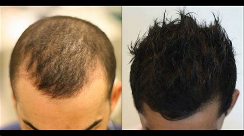 a.r.t. hairloss picture 10