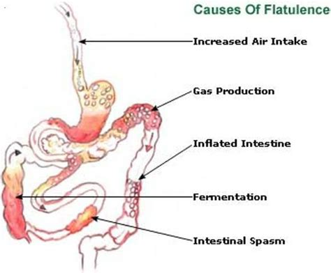 treatments for severe intestinal gas and burning picture 1