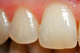 regrow enamel on your h picture 10