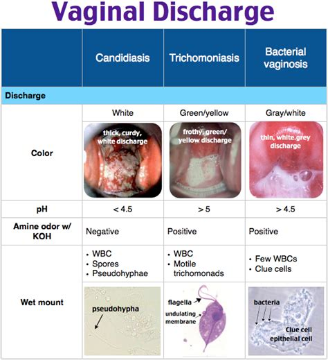 bacterial infection vaginal picture 7