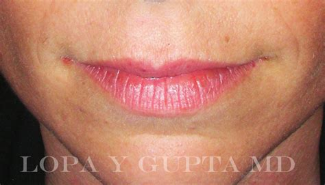Thin vermition of the lips picture 10