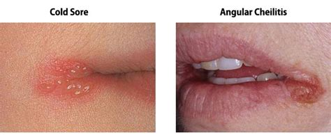 split corners of mouth treatment picture 11