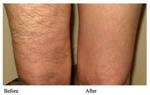 cavitation and radiofrequency treatment in nyc picture 2