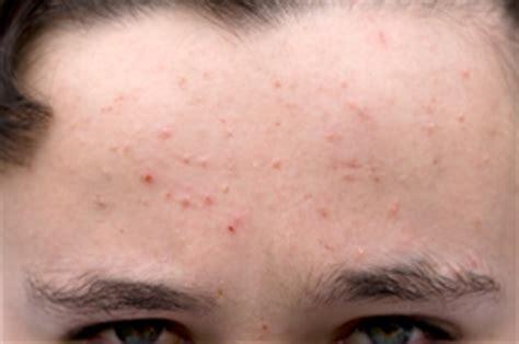 acne ling tukwila wa picture 13