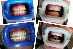 kansas city teeth whitening picture 13