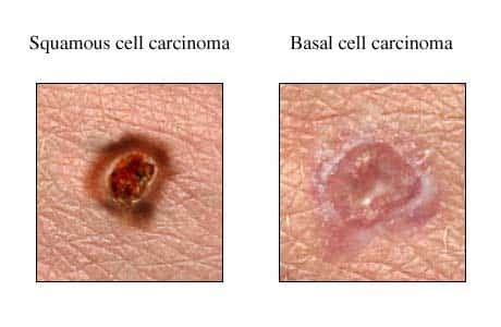 growths on skin that is not skin cancer picture 5