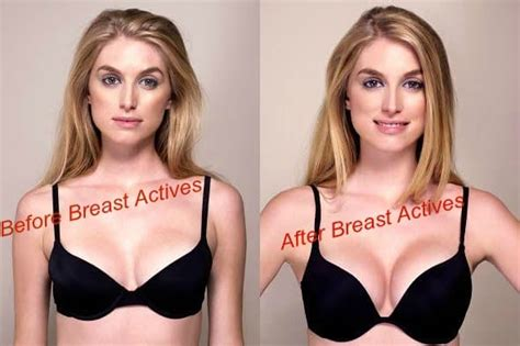 breast actives before after picture 6