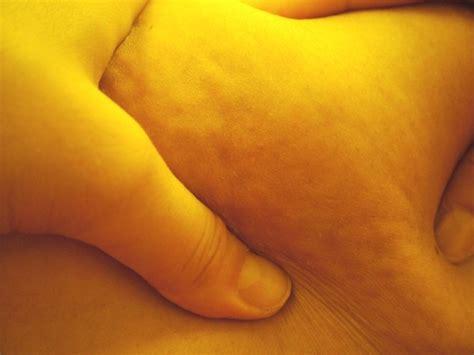 cellulite clinic ca picture 3