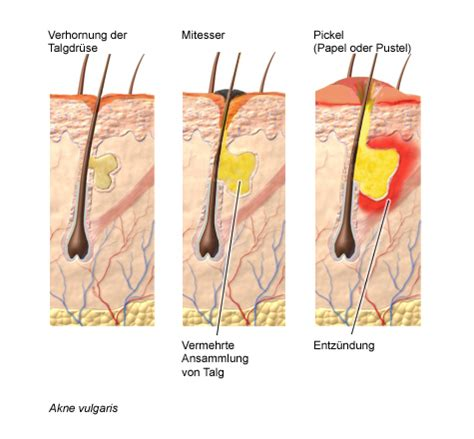 acne vs blackheads picture 11