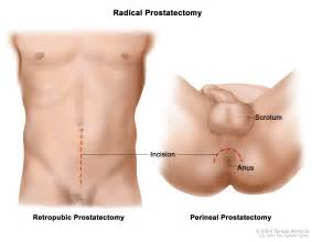 Prostate ectomy picture 1