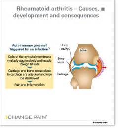 causes of body joint pain picture 5
