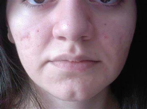 firmer skin face picture 1