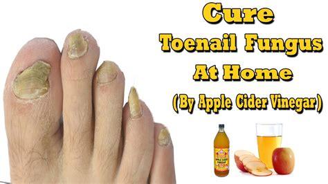 toe nail fungus distilled vinegar picture 3