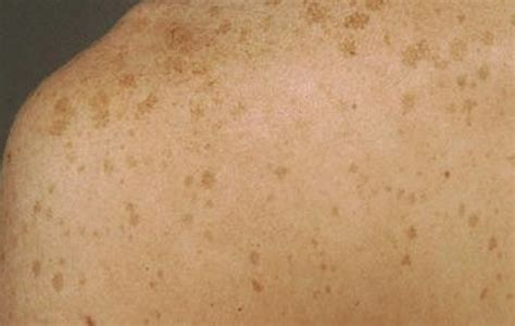 what does liver spots look like picture 10