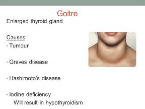 can enlarged thyroid cause arthritis picture 17