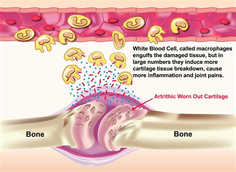causes of body joint pain inflammation picture 5