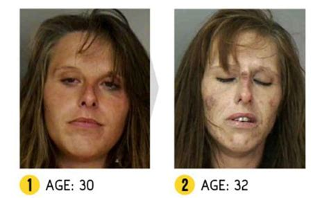meth skin disorders picture 7