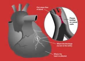 aspirin as blood circulation enhancer picture 3