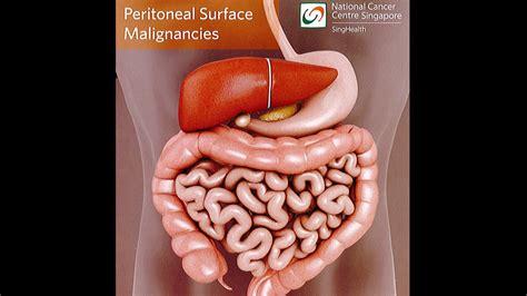peritoneal cancer tumor skin picture 2