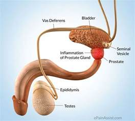 Prostate causes pain in penis picture 7