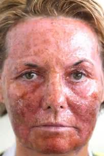 coumadin--any skin breakouts caused by this picture 2