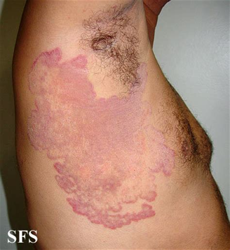 fungal infection of the skin picture 1