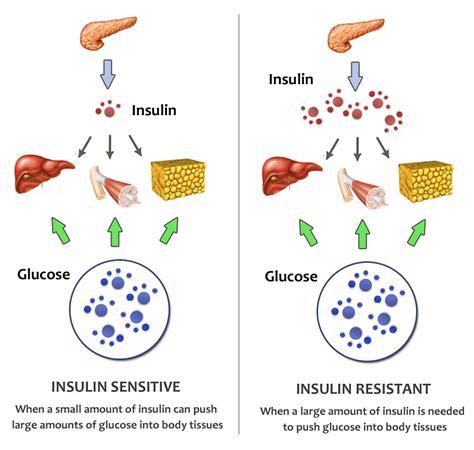 insulin resistant diet picture 7