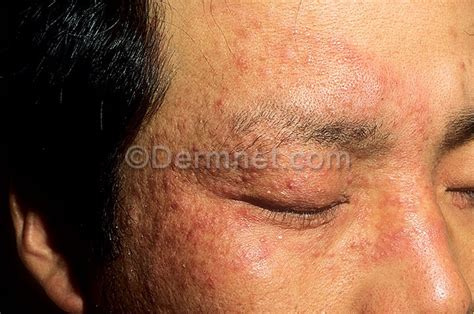 ringworm skin disease picture 14