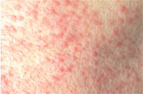 what was blotchy skin problem on may 26 picture 4