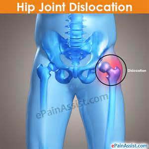 hip pain at leg joint picture 2