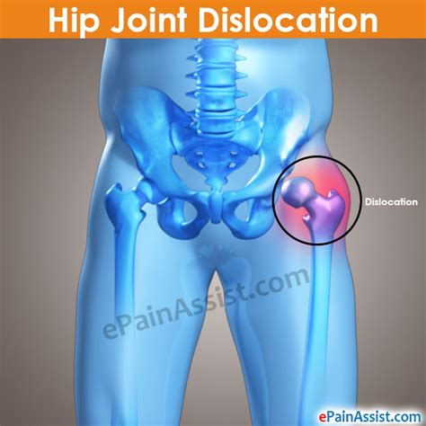 chronic pain in the hip joint picture 11
