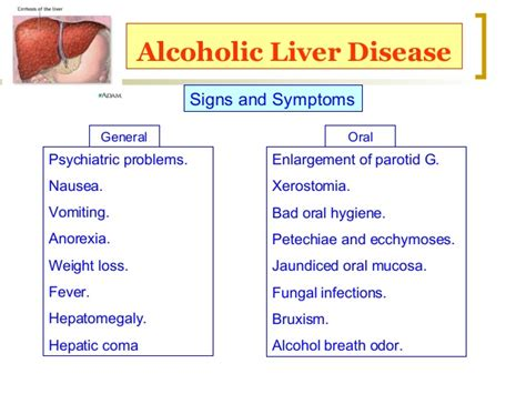 signs and symptoms liver failure picture 10