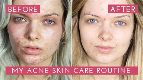 best skincare for chemo acne picture 13