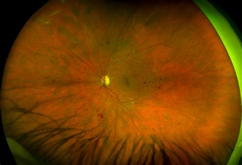 california diabetic retinopathy picture 2