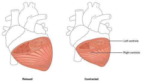 centimeter thickening of heart muscle picture 6