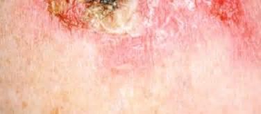 burning skin around picture 9