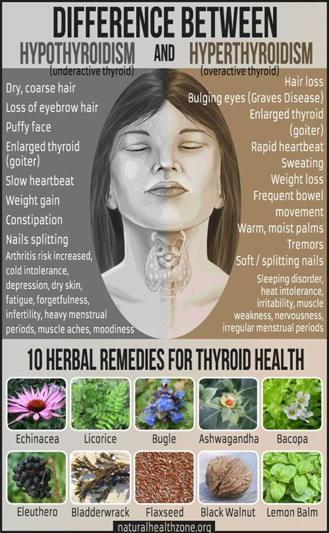 where do i get desiccated thyroid picture 7