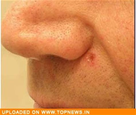 alternative skin cancer treatment picture 1