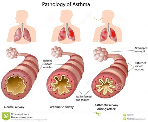 asma health picture 9
