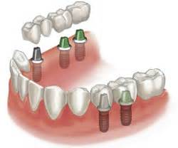 different types of false teeth picture 10
