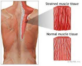 diagnose muscle tears picture 6