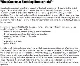 what causes hemorrhoids picture 5