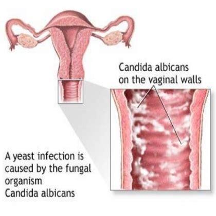 can talazole treat vigina bacteria picture 10