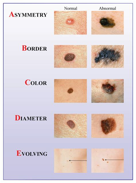 skin cancer warning signs picture 2