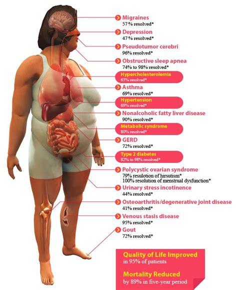 bariatric picture 1