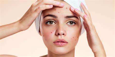 dermatoligist advice for acne care picture 7