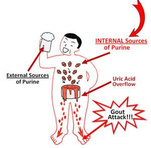 uric acid and cellulite picture 11