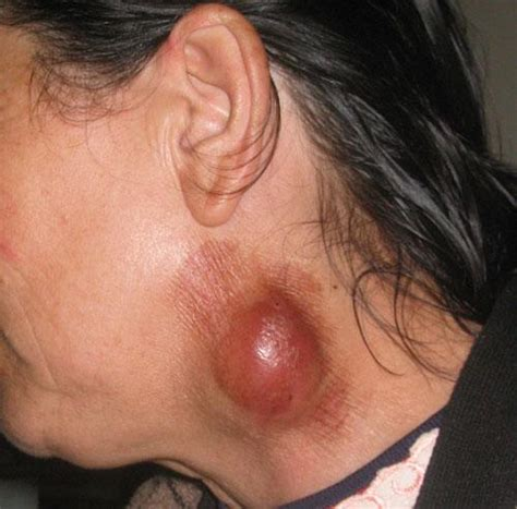 the cause of skin ulcers picture 5